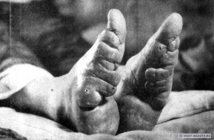 Бинтование ног фото