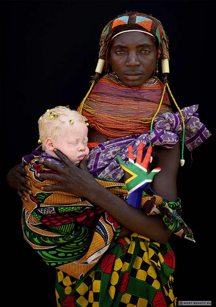 ТОП-10 трагических фактов про людей-альбиносов в Африке