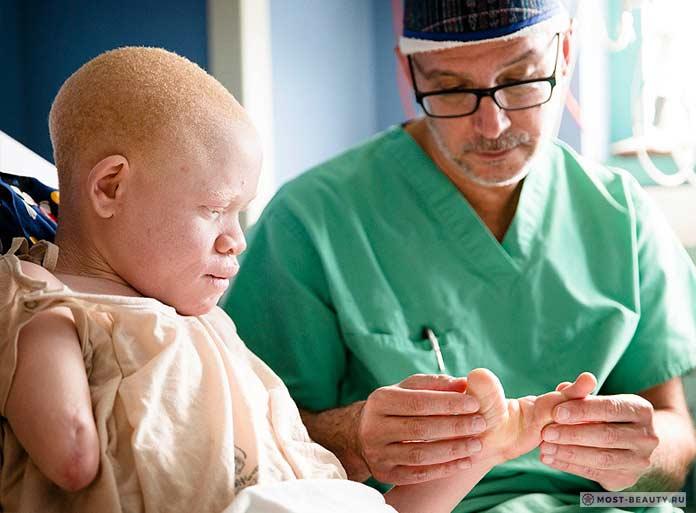 Альбинос на лечении у врача