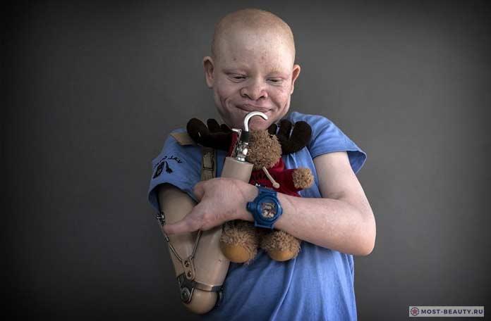 альбинос с протезом руки