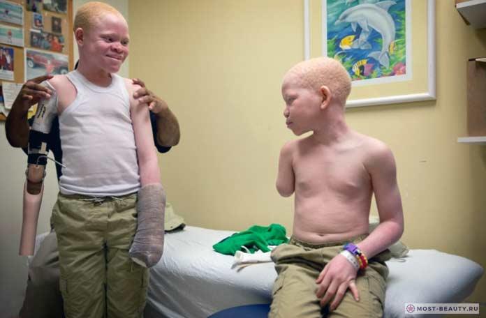 Дети альбиносы без рук