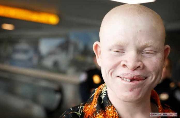 Юноша альбинос