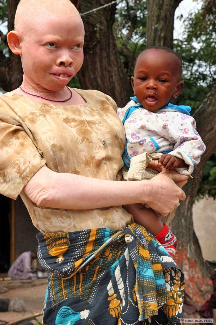 фото альбиносов африканцев сайте много рецептов