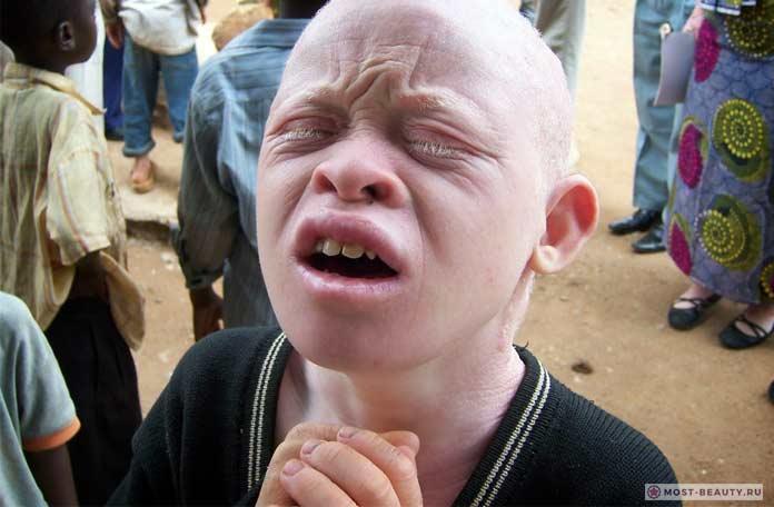 Мальчик-альбинос