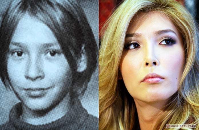 Джена Талакова до и после