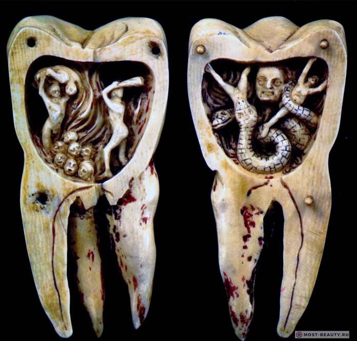 Зубные черви