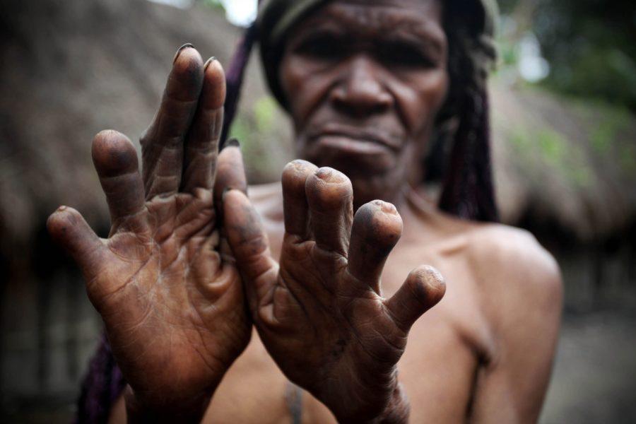 Дани отрезание пальцев